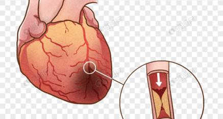 Depresión, ansiedad y riesgo de infarto
